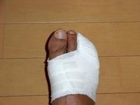 Foot1_2